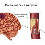 Лечение инфаркта мозга