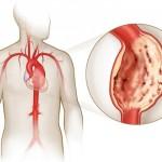 Хроническая травматическая аневризма аорты