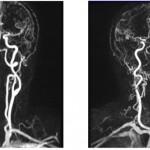 Видео: стеноз устья левой позвоночной артерии. Ангиопластика со стентированием